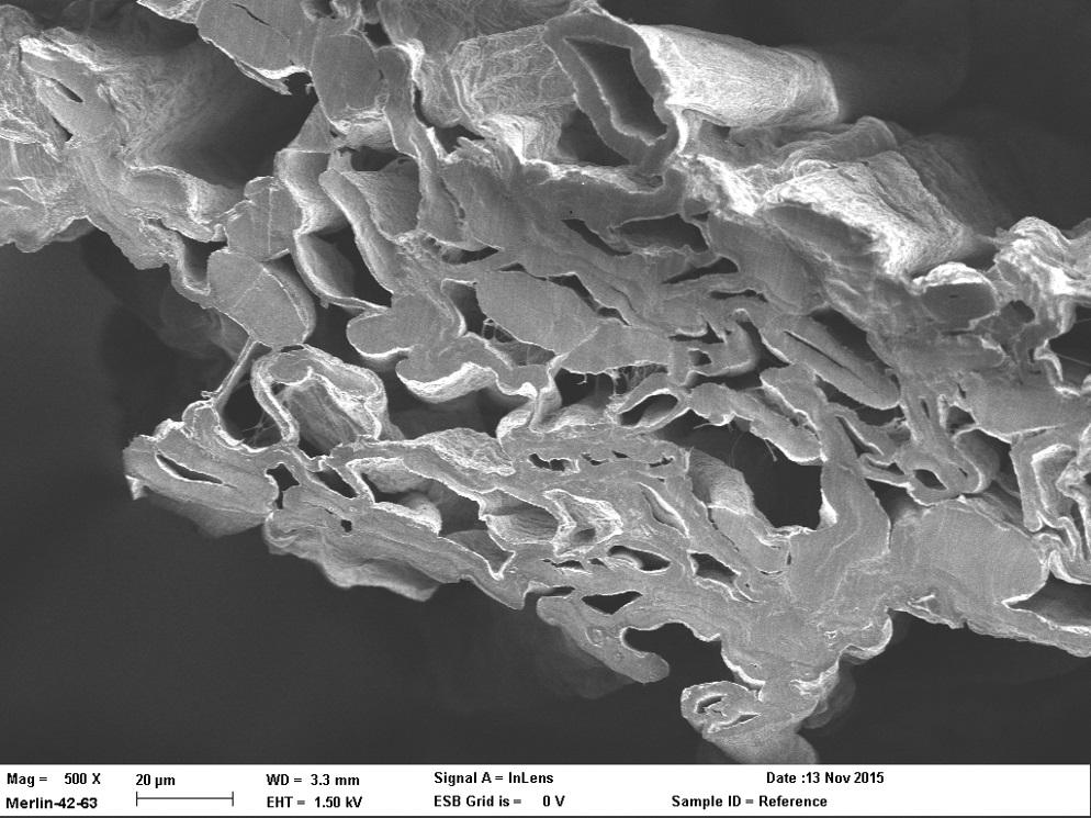 Elektronimikroskooppikuva hormoneja sieppaavan kuitulangan poikkileikkauksesta. Kuva: VTT